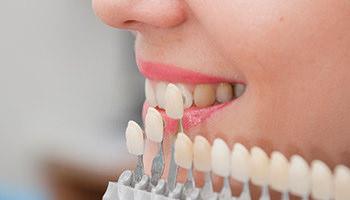 Fatete-dentare