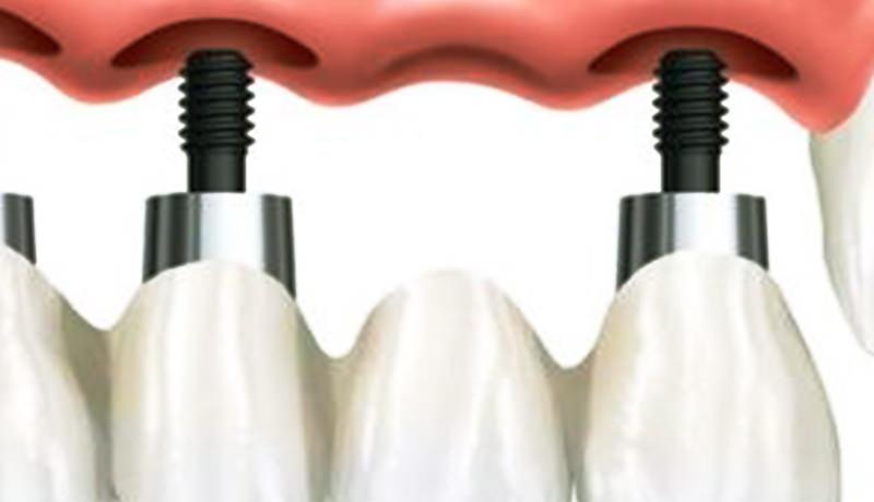 implant dentar chisinau