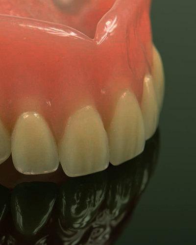 fatetele dentare chisinau