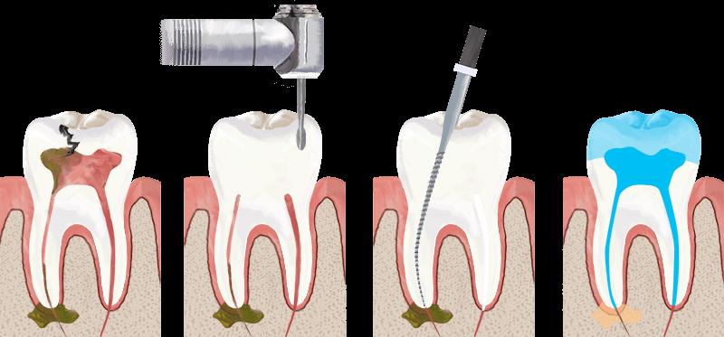Tratament-endodontic-detaliat
