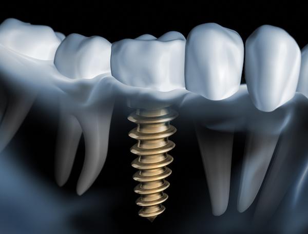 Implanturi dentare la clinica stomatologică Chișinău Imperial Dent