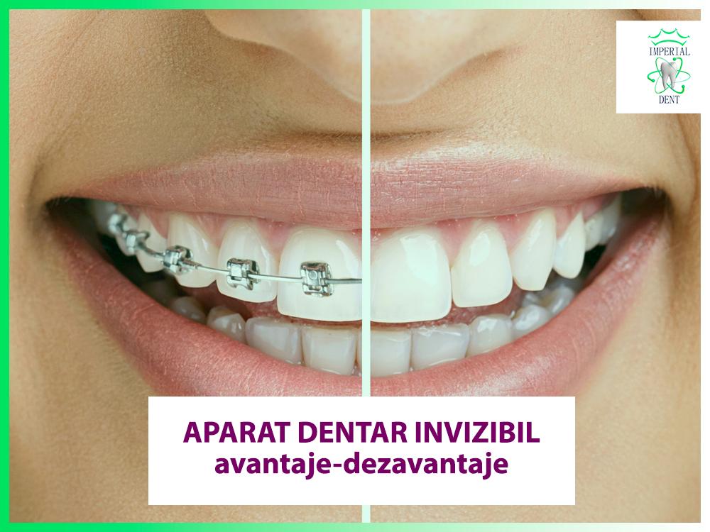 Aparat ortodontic (brakets)