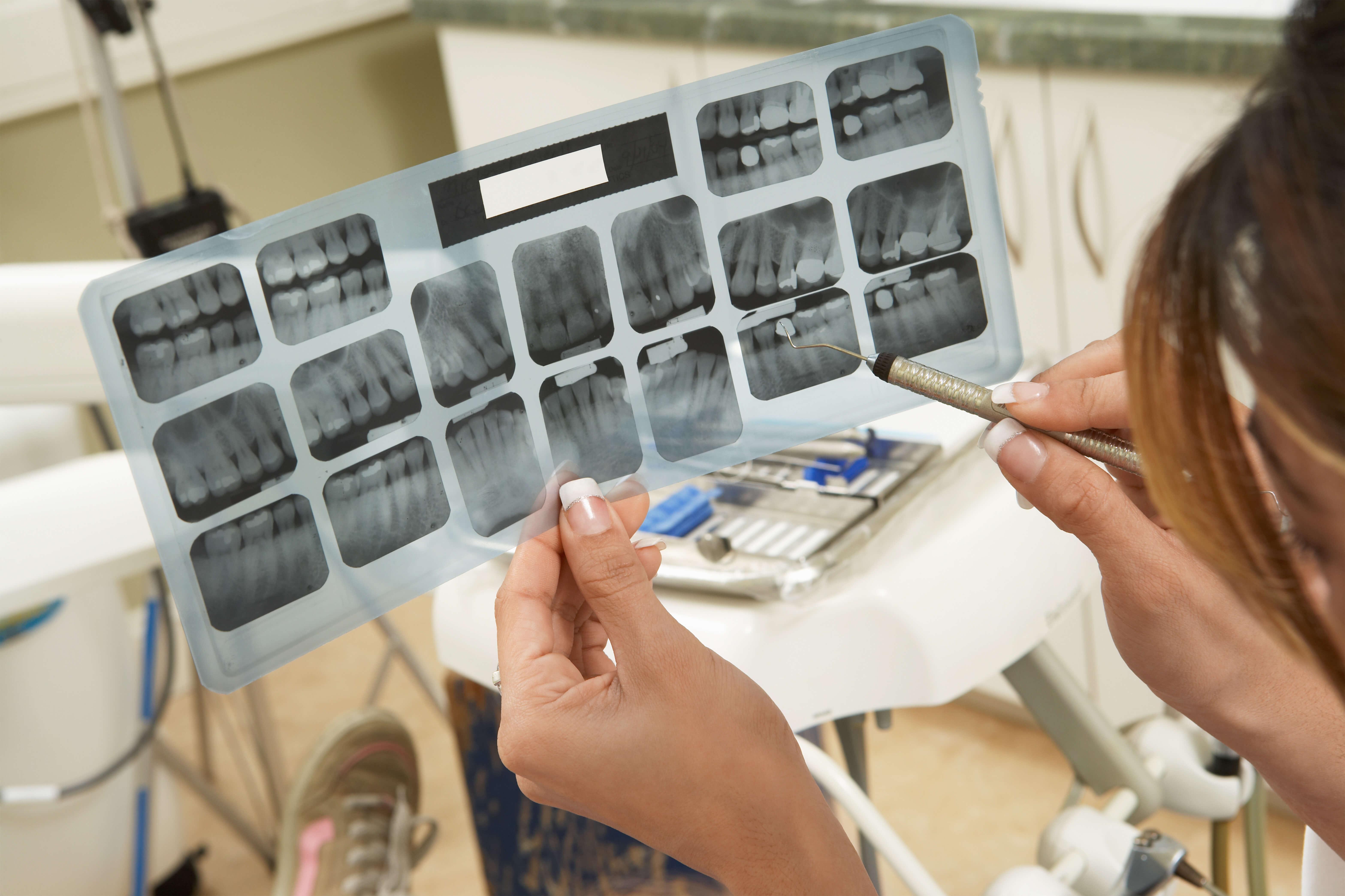 Radiografie dentară în Chișinău