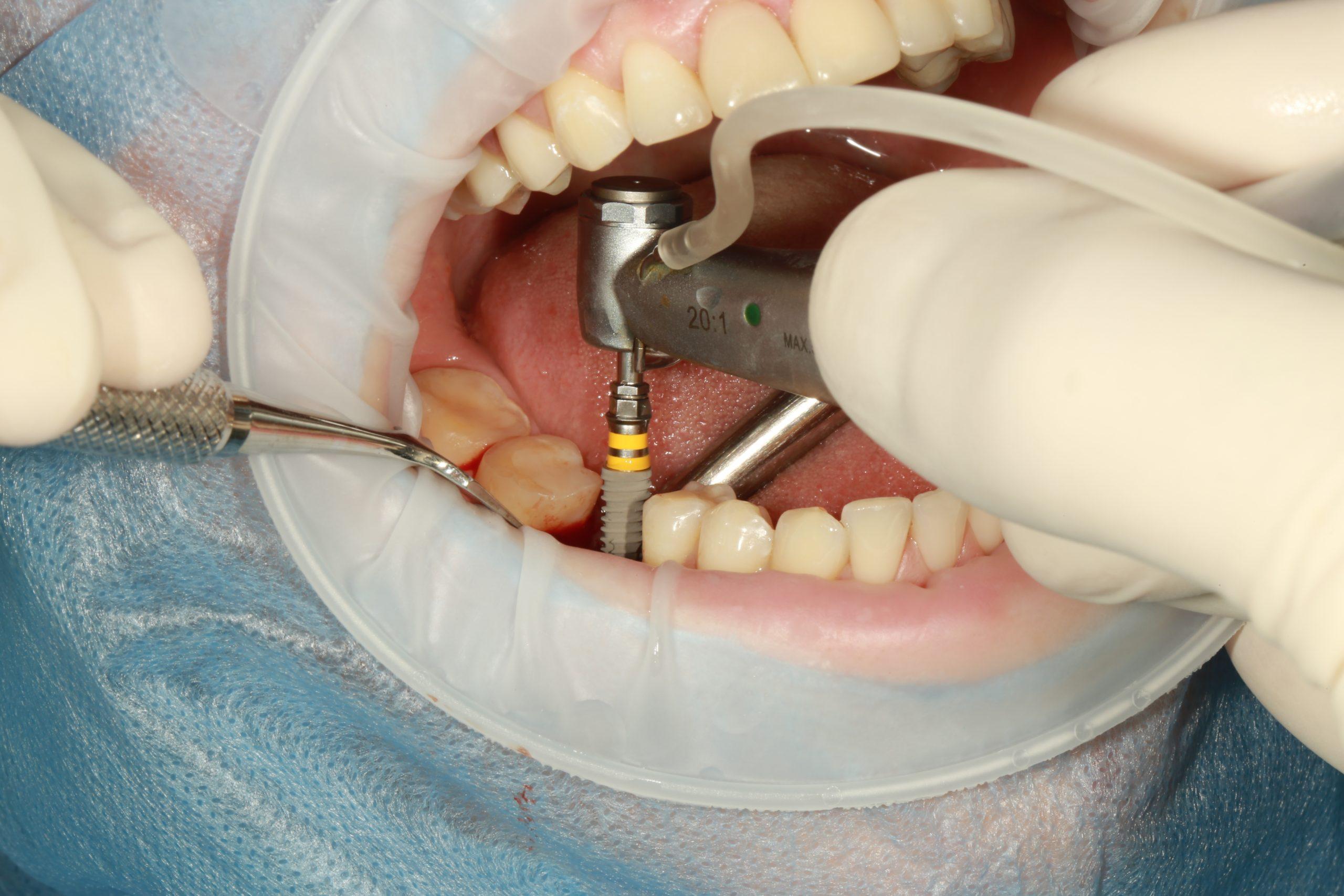 implanturi-dentare-chisinau-botanica-stomatolog